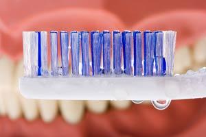 dentures-denture-care
