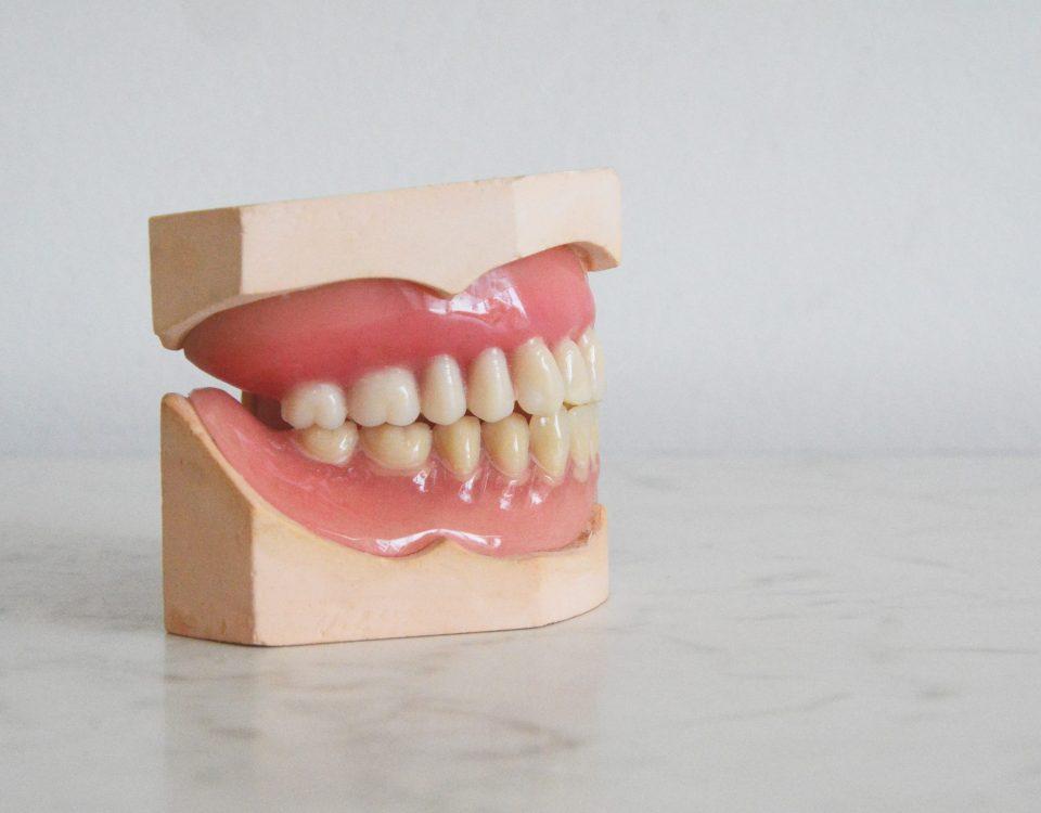 Teeth Stains