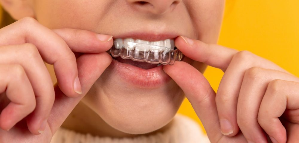 How Long Does Invisalign Take to Work